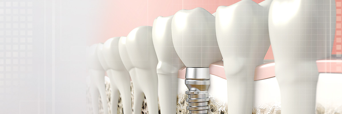 Napa Dental Implants