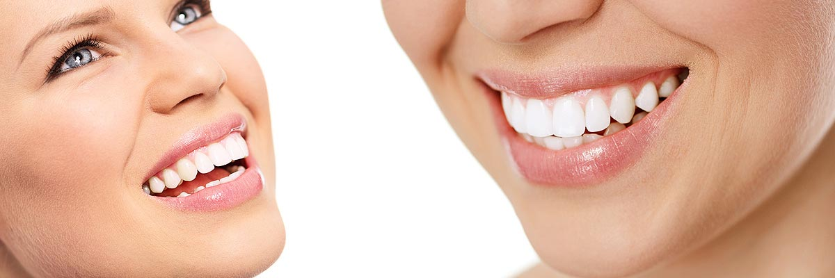 Napa Professional Teeth Whitening