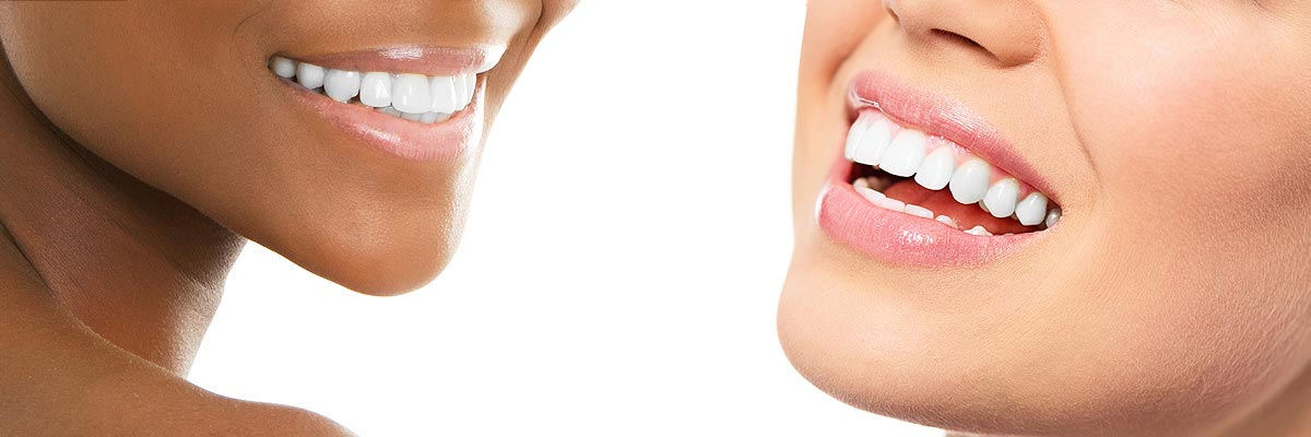 Napa Teeth Whitening